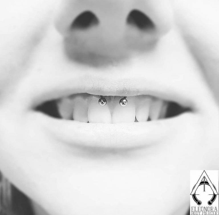 Smiley Piercing: il piercing del sorriso