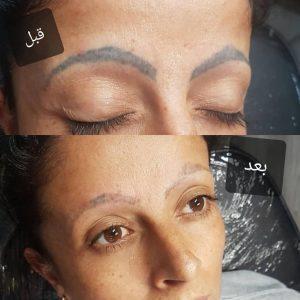 rimozione tattoo sopracciglia photocredit @facetobody_spa