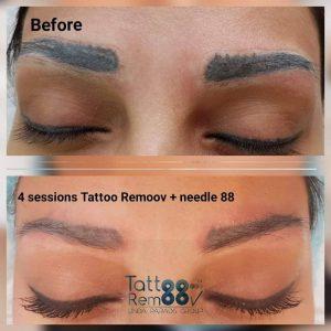 rimozione tatuaggio sopracciglia photocredit @facetobody_spa