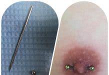 Problemas y cuidado posibles de la perforación del pezón