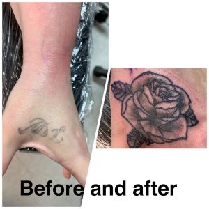 cover-up-e-laser-tattoo-by-@needles_ink___