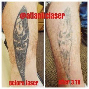rimozione-laser-tattoo-dopo-3-sessioni-photocredit-@atlanticlaser