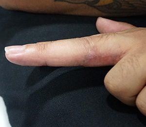 Rimozione-tatuaggio-chirurgia-dopo-photocredit-@misbahkhanmd.com_