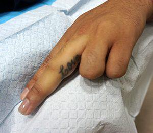 Rimozione-tatuaggio-chirurgia-prima-photocredit-@misbahkhanmd.com_