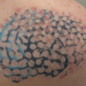 Rimozione-tatuaggio-magic-pen-photocredit-@spaandclinic.com_.au_-1