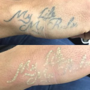 rimozione-tattoos-popcorn-effect-photocredit-@beautiful_skin_lasertherapie