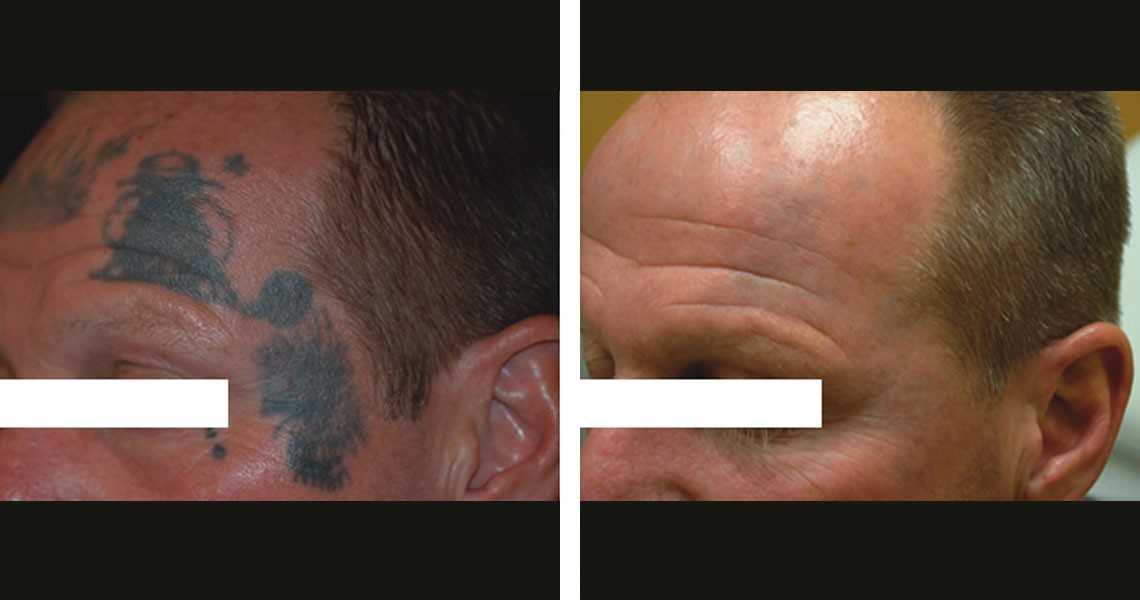 rimozione-tatuaggi-effetto-fantasma-photocredit-@academiadayclinic.ch_