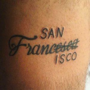 rimozione-tatuaggio-photocredit-@renudelaser