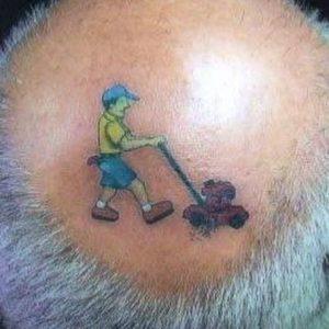 rimozione-tatuaggio-photocredit-@roroar0203