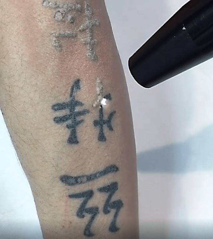 rimozione tatuaggio by @cleaninkstudio