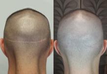 Tricopigmentazione-correttiva