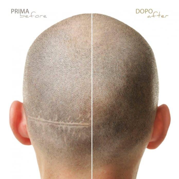 Tricopigmentazione correttiva
