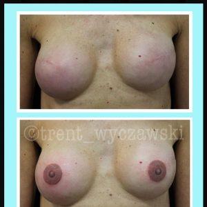 tatuaggio nipple by @trent_wyczawski